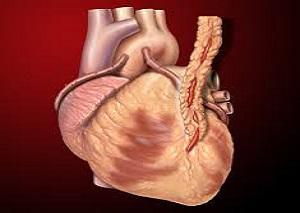 bypass heart surgery